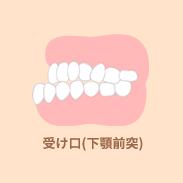 受け口(下顎前突)