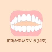 歯のガタガタ(開咬)