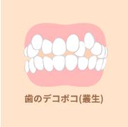 歯のデコボコ(叢生)