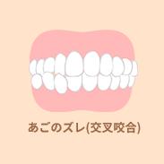 あごのズレ(交叉咬合)
